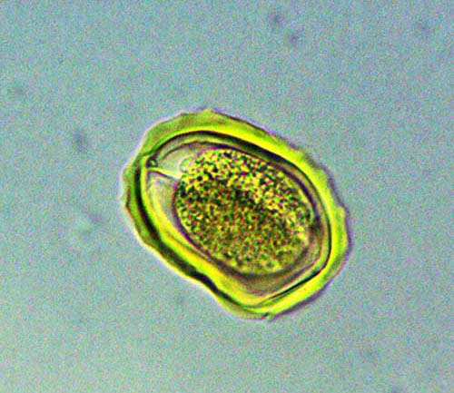 Ascarid Egg (w.m.) magnified 400 times