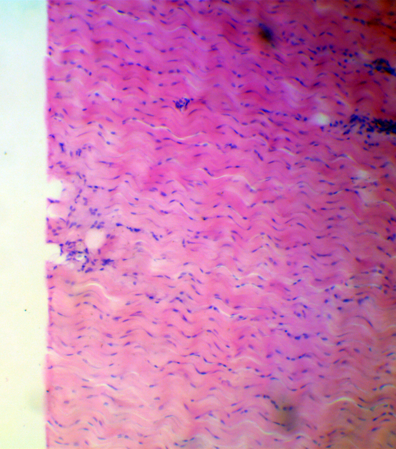 Dog Cardiac Muscle (l.s.) magnified 100 times